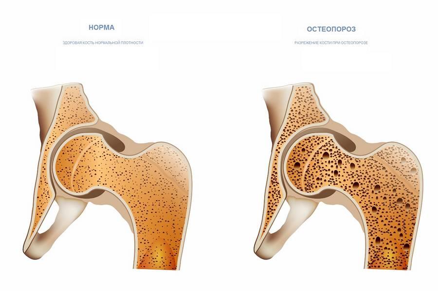 Изменение костей при остеопорозе